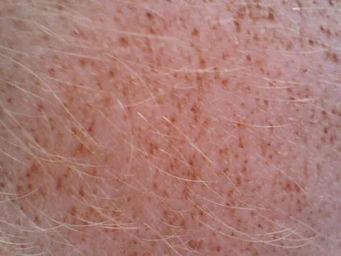面及股内侧皮肤上出现红斑
